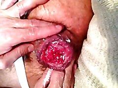 arabmancunt`s - fisting + big rosebud